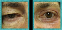 Blepharoplasty (Eyelid lift)