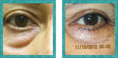 Cosmetic Lower Eyelid Blepharoplasty