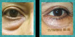 Cosmetic Lower Eyelid Blepharoplasty