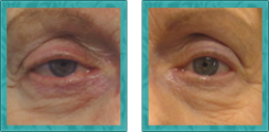 Myogenic Ptosis Repair